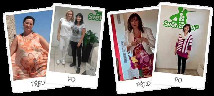 Svět-Zdraví.cz a výsledky klientů - Před a po zhubnutí