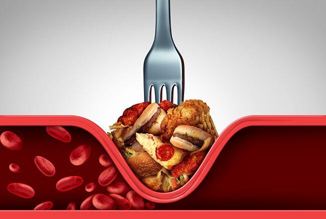 Jak léčit vysoký cholesterol?